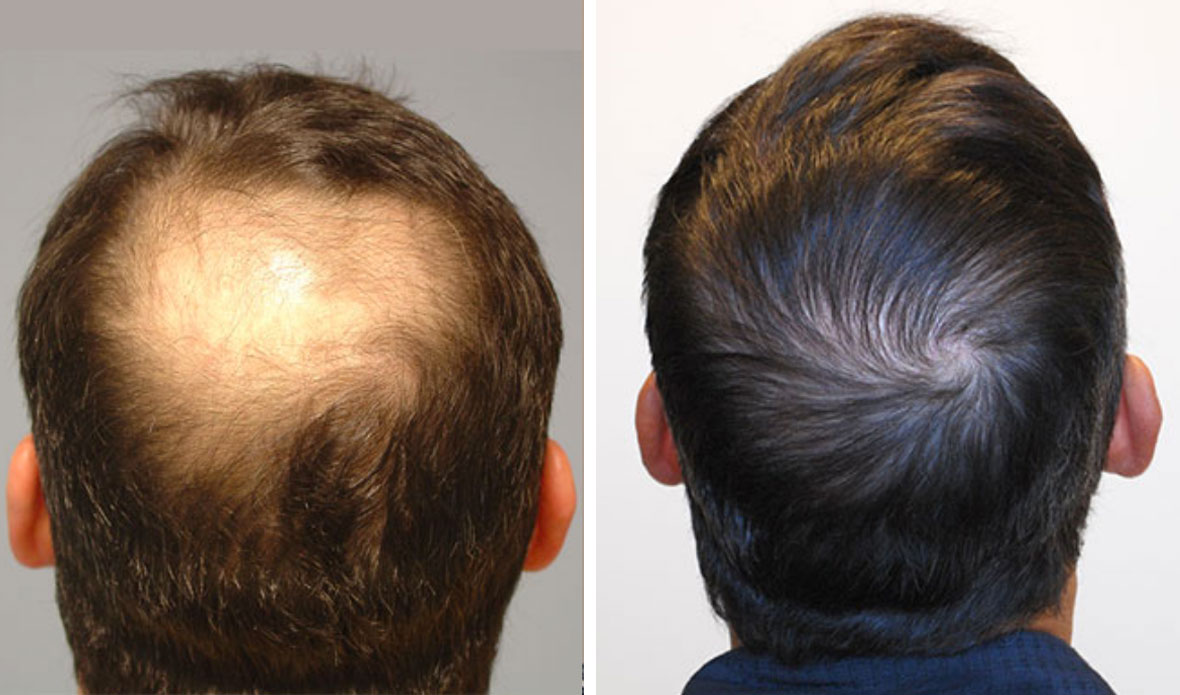 Crown Hair Loss Northwest Restoration