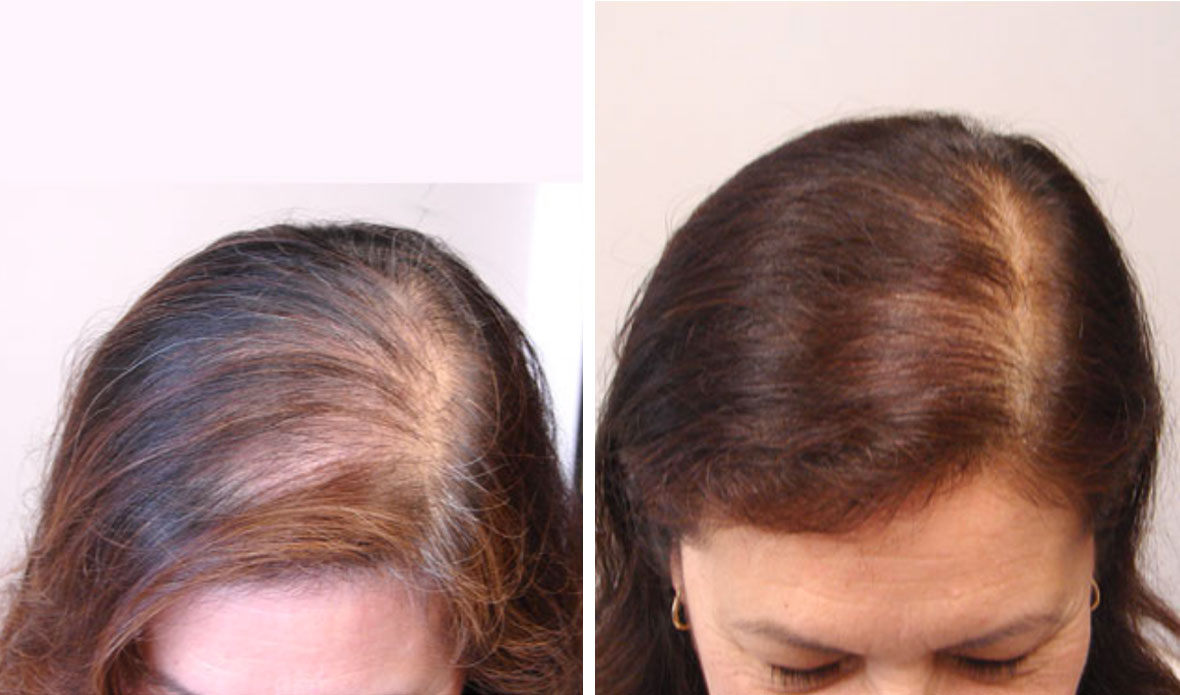 Before Amp After Photos Northwest Hair Restoration Dr